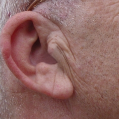 People Creased Earlobe