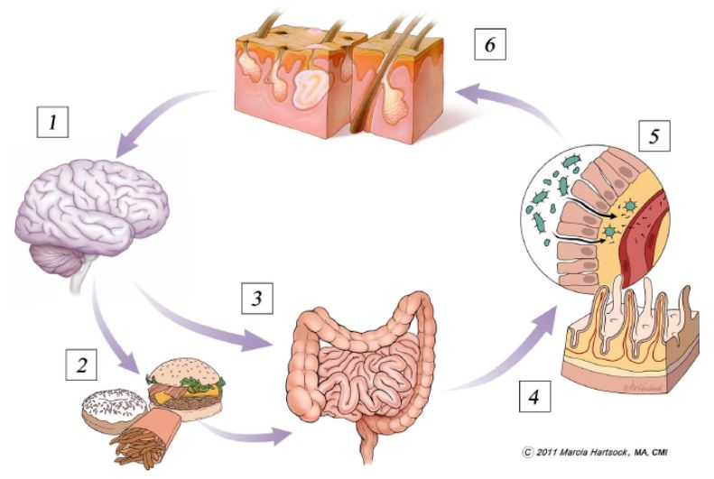 Gut – Skin Connection